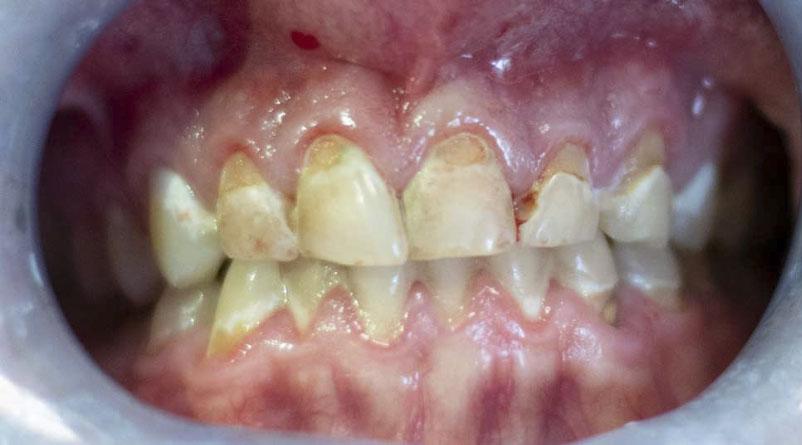 dental fillings near me