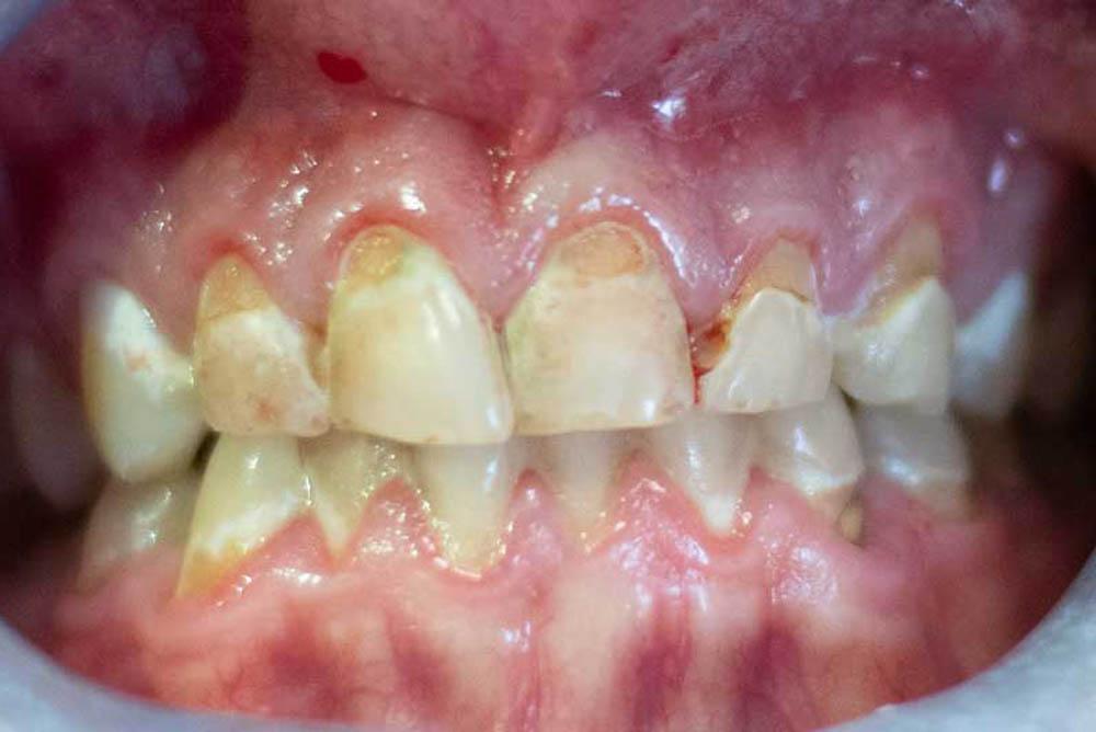 teeth fillings near me in galleria houston