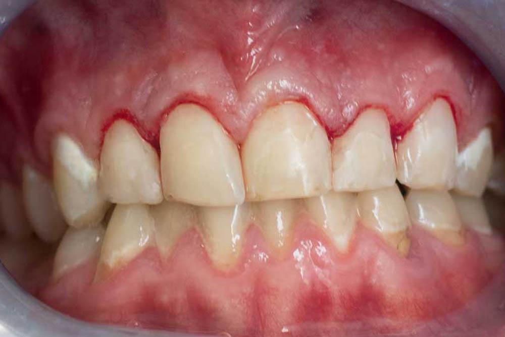 teeth filling near me