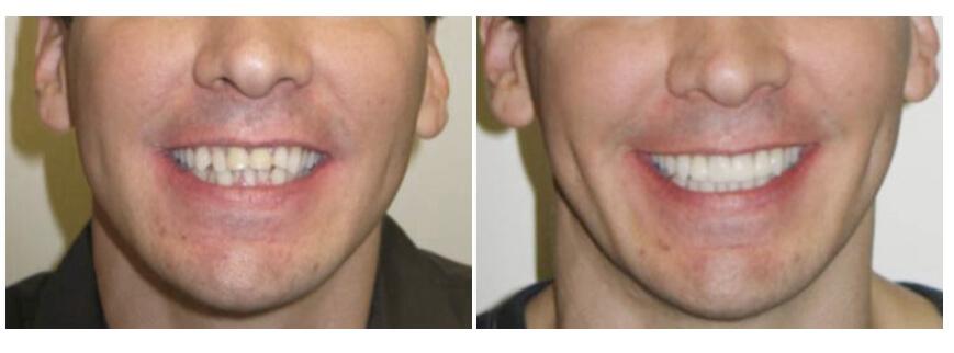 teeth whitening houston texas