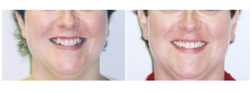 teeth whitening services houston