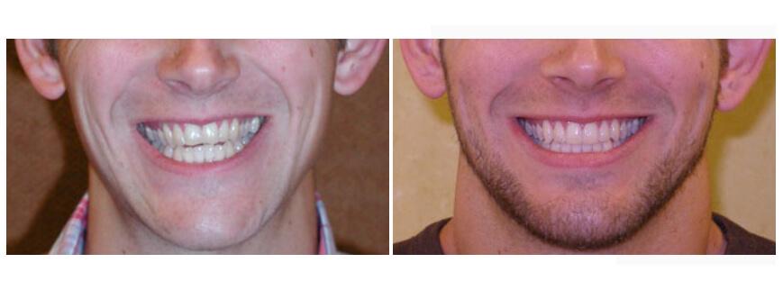 best teeth whitening in houston