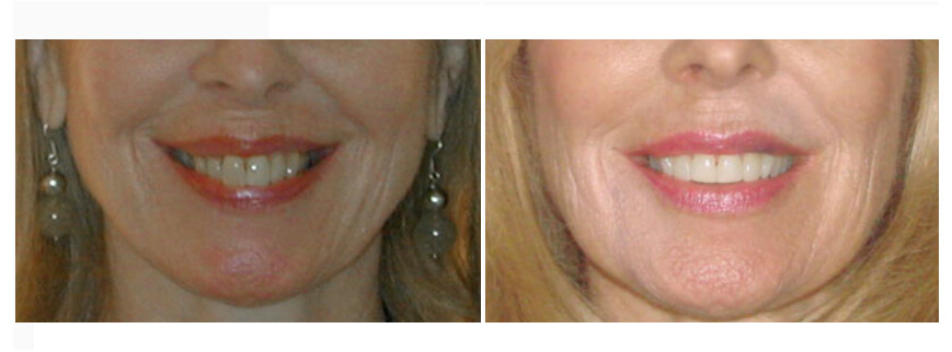 teeth whitening procedure houston