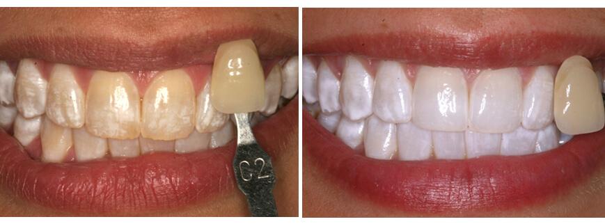teeth whitening houston