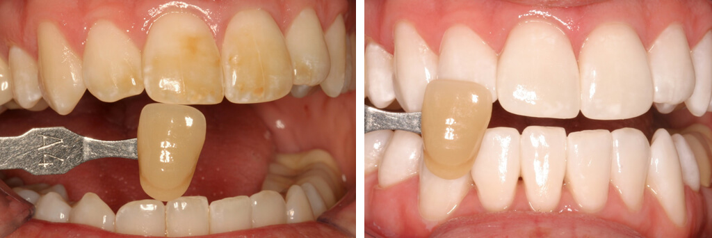 Emergency Teeth Whitening