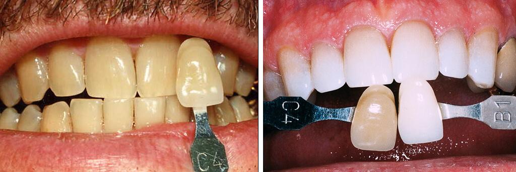 Teeth Whitening Texas